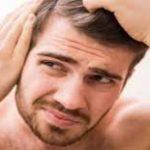 لماذا يحدث الصلع عند الرجال